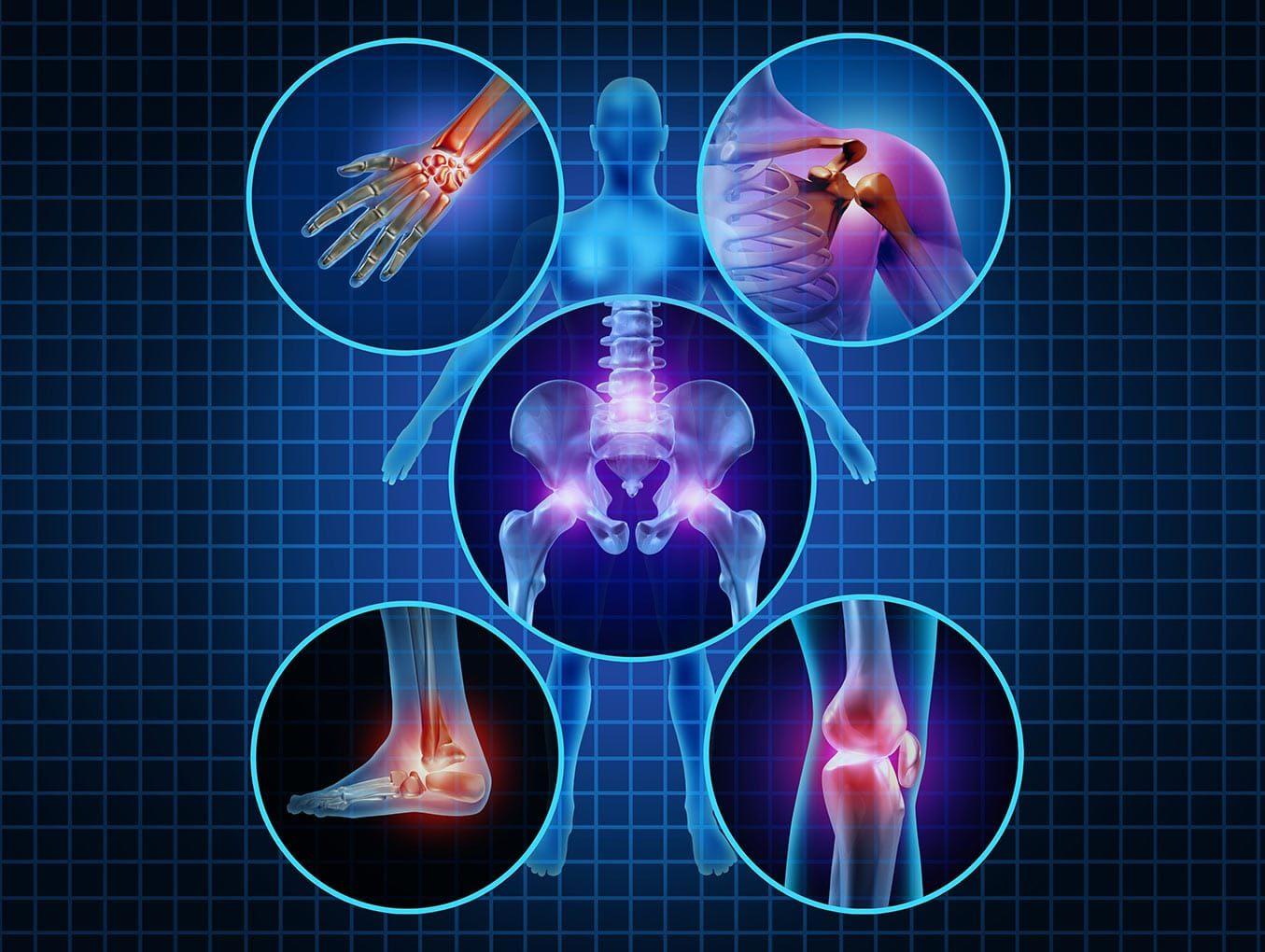 Terapias mente-corpo para as seis dores crônicas mais prevalentes: Osteoartrite