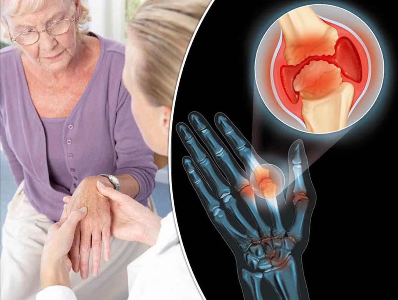 Terapias mente-corpo para as seis dores crônicas mais prevalentes: Artrite Reumatoide