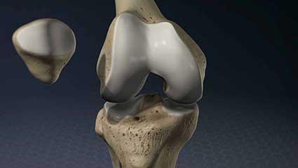 anatomia-do-joelho.jpg