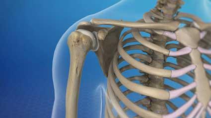 anatomia-do-ombro.jpg