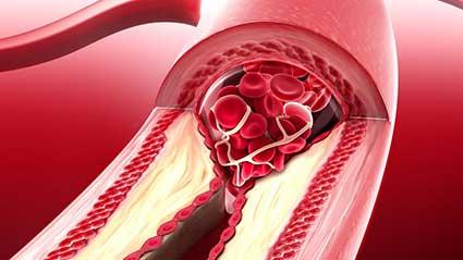 aterosclerose.jpg