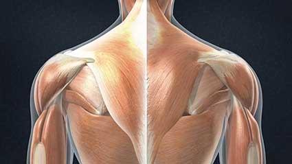 distensao-muscular-da-parte-superior-das-costas.jpg