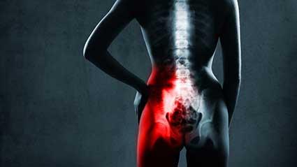 dor-articular-sacroiliaca.jpg