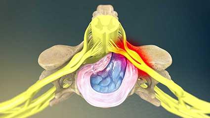 hernia-de-disco-cervical.jpg
