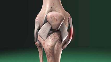 lesao-do-ligamento-colateral-medial.jpg