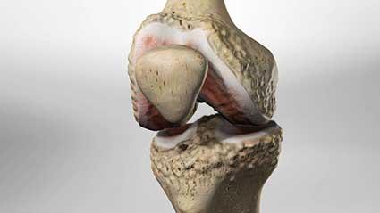 osteoartrite-do-joelho.jpg