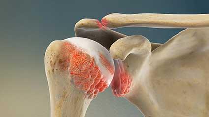 osteoartrite-do-ombro.jpg
