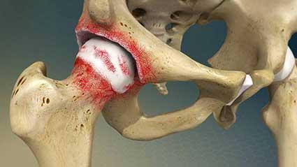 osteoartrite-do-quadril.jpg