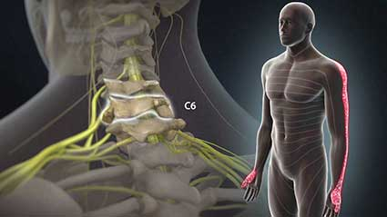 radiculopatia-cervical.jpg