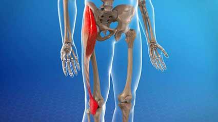 sindrome-da-banda-iliotibial-itbs.jpg